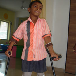 An artificial limb for  the physically challenged